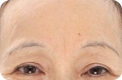 LightStim LED - Wrinkles & Anti-Aging Light After 1