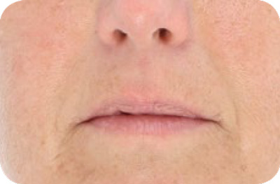 Wrinkles (Anti-Aging) After - LED Light Therapy
