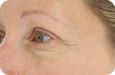 Wrinkles Before - LED Light Therapy