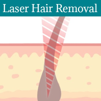 Laser Hair Removal St Peters