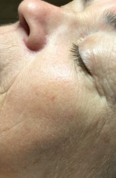 Wrinkles & Anti-Aging After