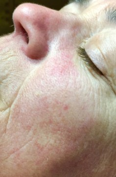 Wrinkles & Anti-Aging Before