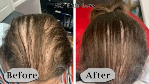 PRP Hair Loss Therapy Before and After -2