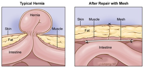 What is Hernia?