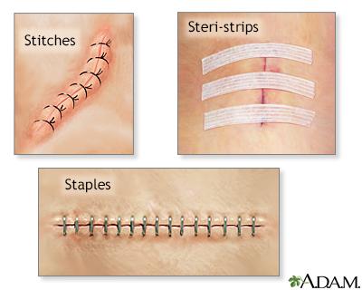 Wound Closure Surigical Staples Primum Non Nocere