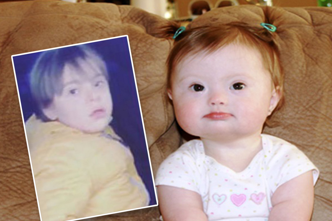 Persecution in Turkey left kids with a Down Syndrome