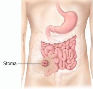 what-is-an-ileostomy-image