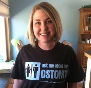 Lindsey Russell colostomy jpouch crohn's story OstoMYstory stoma ostomy crohn's disease ulcerative colitis ileostomy colostomy urostomy inflammatory bowel disease ibd stolen colon