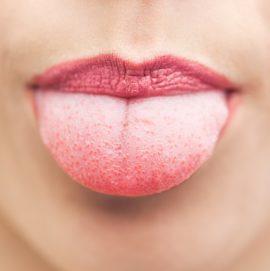 Как можно эффективно избавиться от волдырей на языке