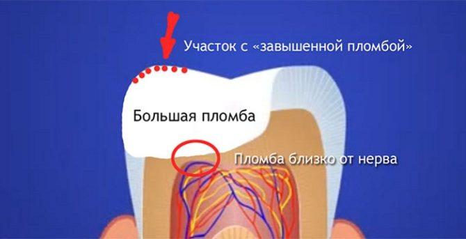 Почему после лечения зуба болит зуб? Болит зуб после лечения: в каких случаях требуется помощь врача.