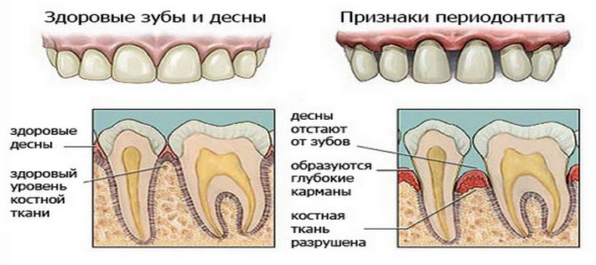 Toothache During Pregnancy What To Do - Root Canal Toothache