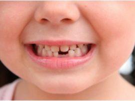 Когда меняются зубы у детей на постоянные. Сколько раз меняются зубы у человека? Какие аномалии числа зубов бывают