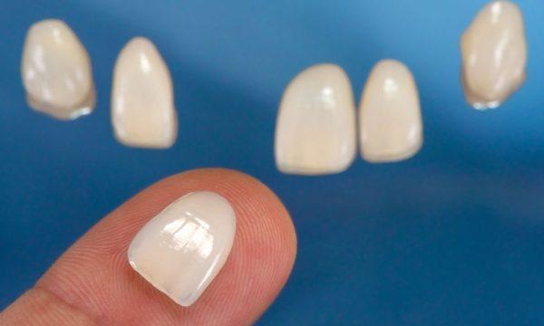 Виниры на зубы (зубные накладки): что это, как делают ...