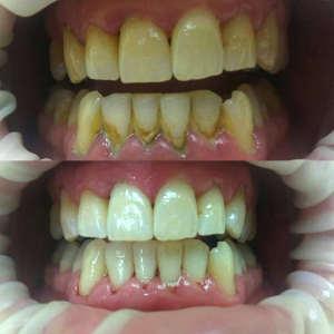 Профессиональная чистка зубов в выходные дни в Виннице ...