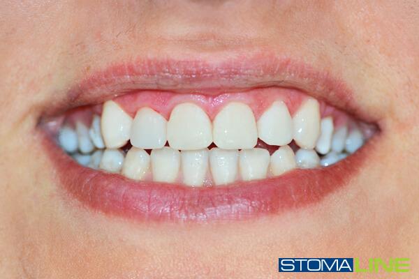 Фото до и после лечения зубов, фото наращивания зуба ...