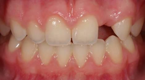 Отсутствующие верхние резцы - ретроспективное исследование, сравнивающее ортодонтическое закрытие промежутка между зубами с имплантацией