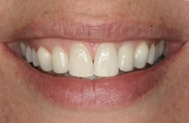 Влияние герметизирующих агентов (силантов) на шероховатость поверхности и цветовую стабильность искусственных зубов