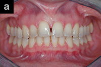 Снимок передних зубов с ретрактором 1