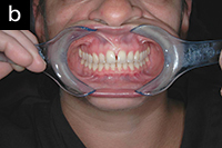 Снимок передних зубов с ретрактором 2
