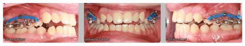 Эластичные цепи и спирали оказывают постоянное интрузионное воздействие на премоляры и моляры на верхней челюсти