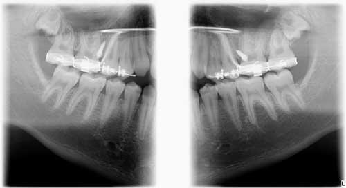 Прикусная рентгенограмма