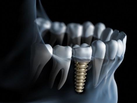 Влияние геометрии резьбы имплантата на вторичную стабильность, плотность кости и качество контакта имплантата и кости