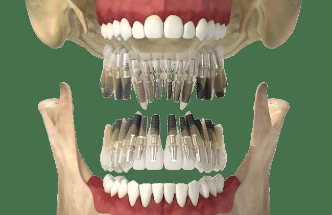Анализ нагрузок на имплантат, создаваемых частичными несъемными протезами с консолью