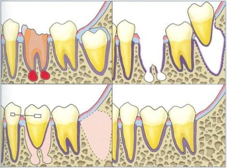 Аутотрансплантация зуба