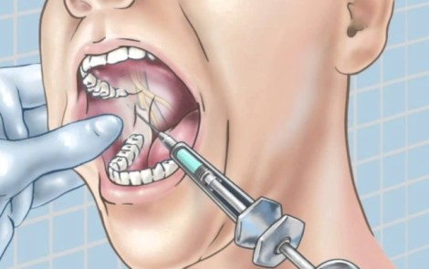 Буккальная анестезия без иглы - результаты исследования