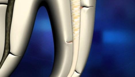 Влияние различных растворов для финальной ирригации на стойкость к разрушению зубов с запломбированными каналами