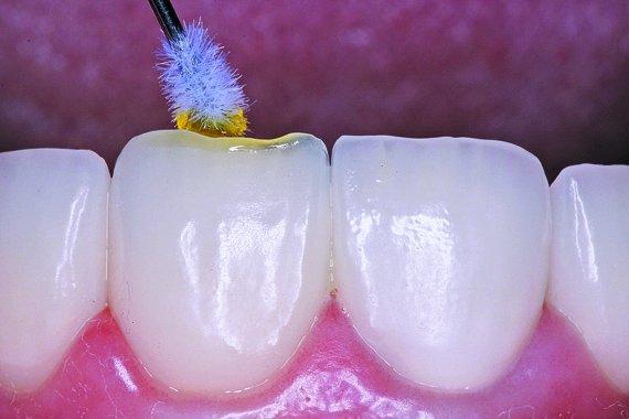 Рис. 3а - Как отреставрировать керамический зубной протез, а не менять его: пошаговое руководство
