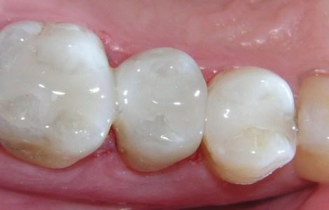 Адгезия и молочные зубы - влияние способа применения адгезива и состояния эмали на результат
