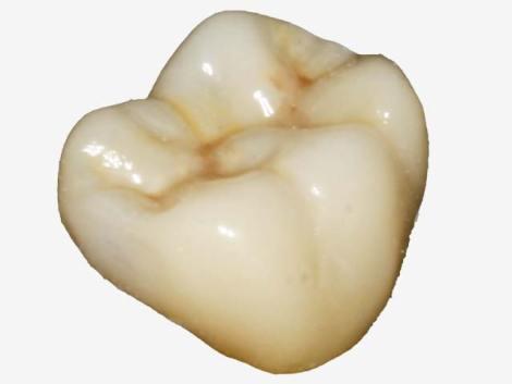 Какие непрямые реставрации одиночных жевательных зубов с запломбированными корнями служат дольше