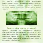 Зачем нужен рентген зубов 500х708