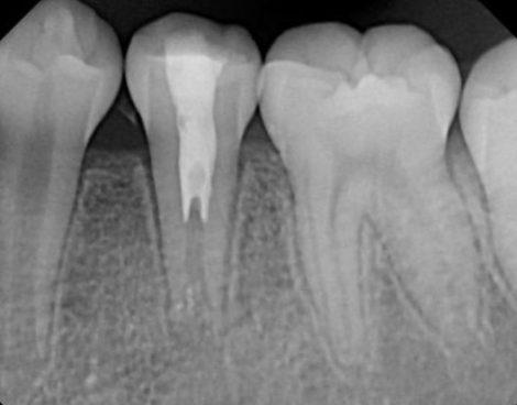 Регенерация после горизонтального перелома корня, вывиха и перфорирующей резорбции корня - серия клинических случаев
