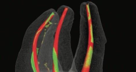 Как концентрация гипохлорита и длина иглы влияют на качество удаления биоплёнки