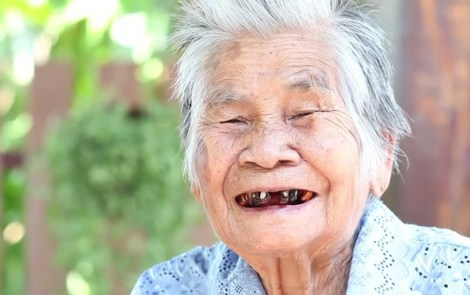 Изменение цвета зубов в среднем и пожилом возрасте - 8 лет наблюдений