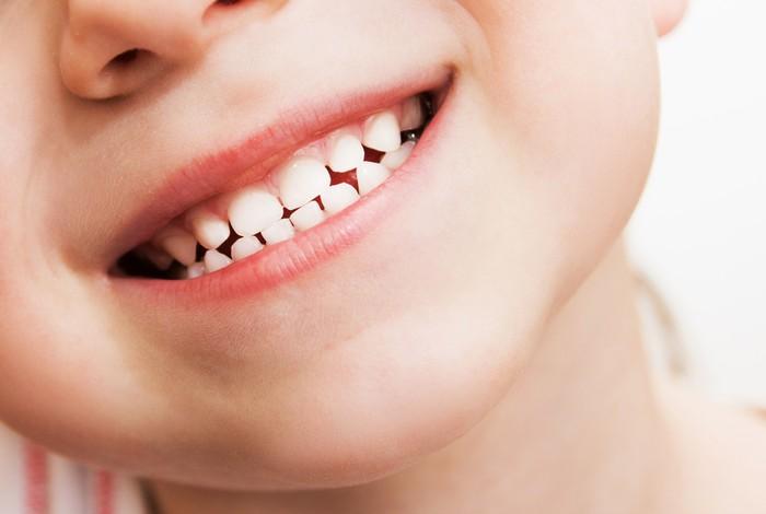 Стоматологический портал Стоманет ру Страница из Новости  Композитные реставрации молочных зубов выживаемость и факторы риска Тема Детская стоматология