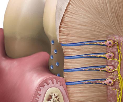 Стоматологический портал Стоманет ру Новости стоматологии  Что лучше справляется с гиперчувствительностью дентина при некариозных поражениях в пришеечной области Мета анализ