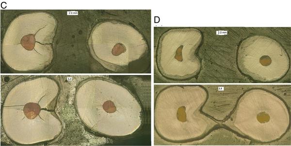 Перелом корня двухкорневых премоляров верхней челюсти как результат латеральной конденсации гуттаперчи: причины и минимизация рисков