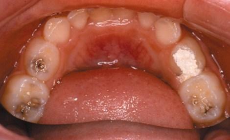 Профилактика кариеса молочных зубов - есть ли эффект от нанесения фторлака 4 раза в год - Двухгодичное исследование