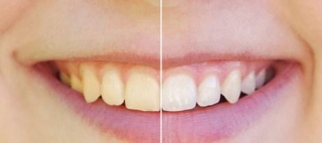 Как противовоспалительные средства влияют на чувствительность зубов после профессионального отбеливания