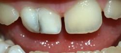 Povreda zuba fotka