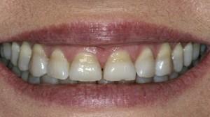 Izbeljivanje zuba popusti