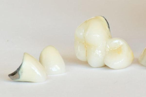 Металлокерамические коронки | Стоматологический центр 32 в ...