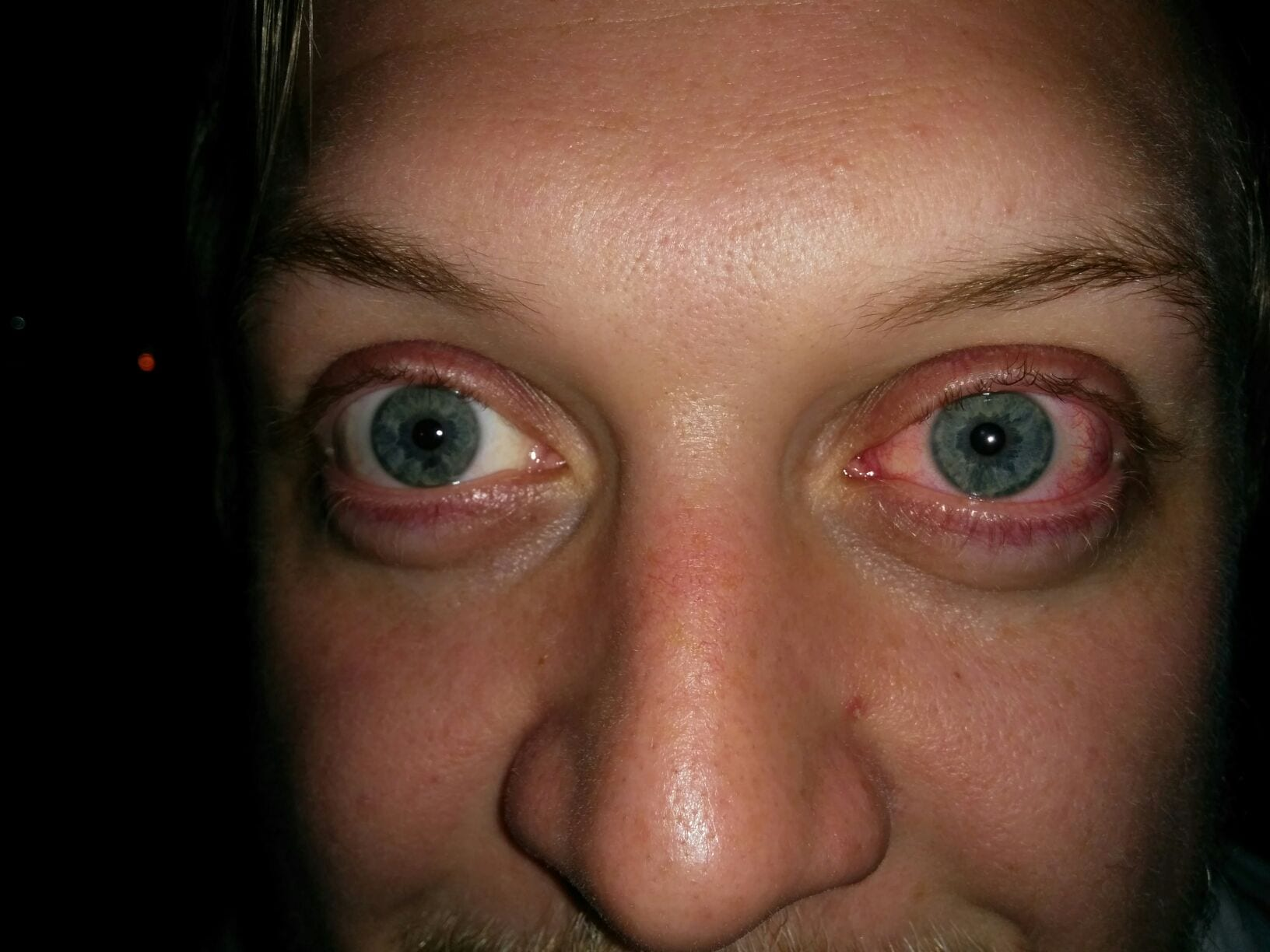 visine röda ögon