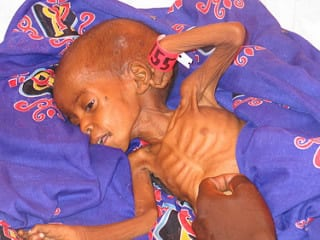 An Illinois 6-year-old starved of food — and protection