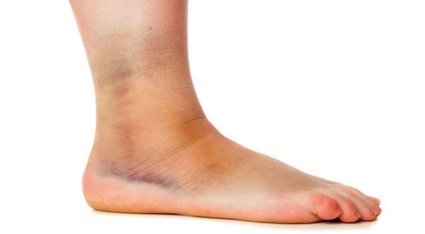 Отёк суставов ног: лечение в клинике Стопартроз в Москве