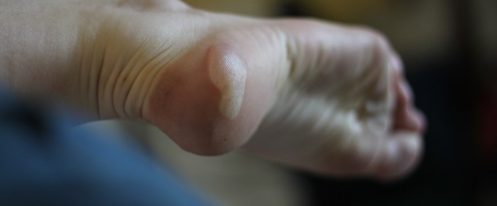 Blisters and Calluses INSIDE Your Body?