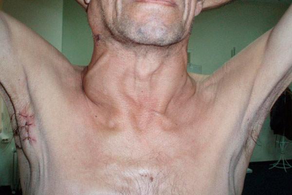 Воспаление лимфоузел при онкологии